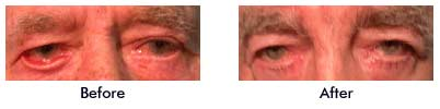 Before and After Eyelid Surgery Sagging Eyes Eyelids