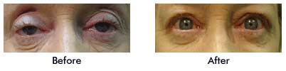 Elderly Female Lady with Bilateral Ptosis
