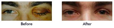 Male with traumatic left ptosis