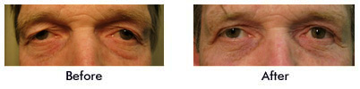 ba july2010 Blepharoplasty