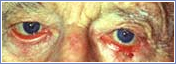 eyelid 2 Eyelid Procedures