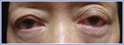 eyelid 3 Eyelid Procedures