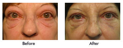 Before and After Child with Ptosis of left upper eyelid
