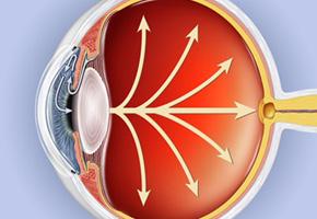 eye-glaucoma